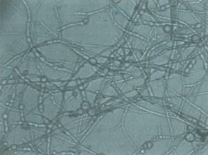 Fusarium Oxysporum Treatment 1st Stage